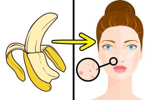 Banana-Peel-Reduce-Acne