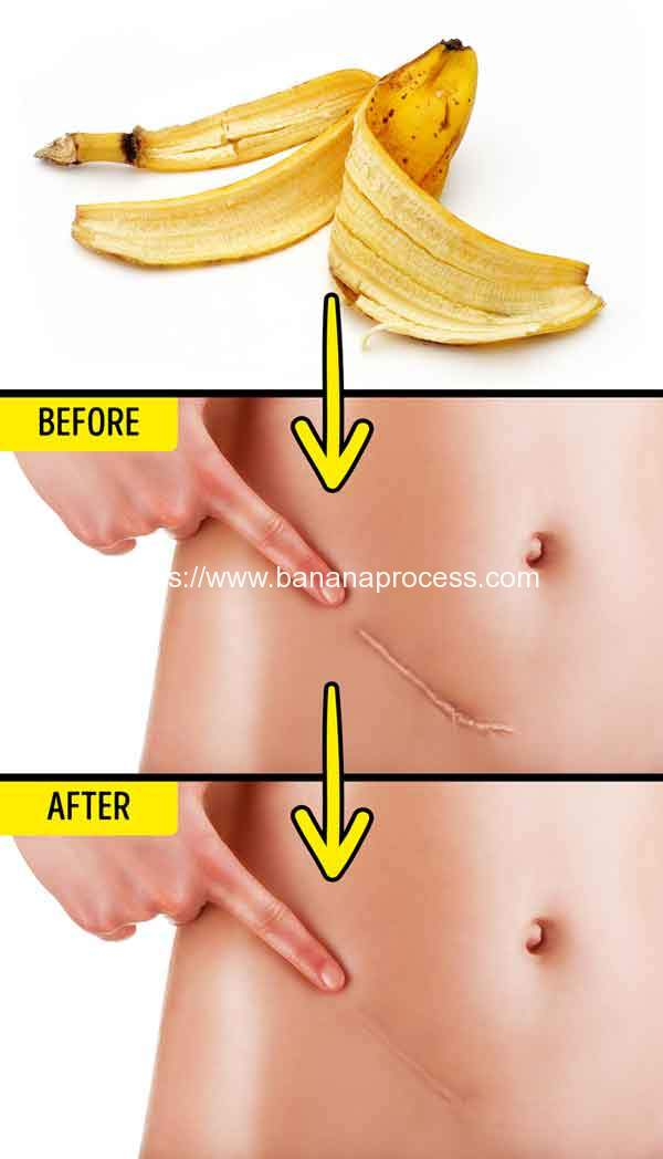 Banana-Peel-Reduce-Scars