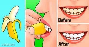 Banana-Peel-Whiten-Teeth